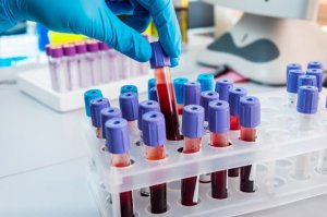 Blood Testing Tips