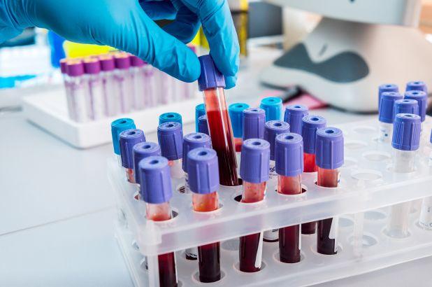 Blood Testing Tips