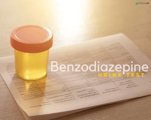 Benzodiazepine Urine Screen