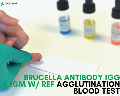 brucella antibody igm