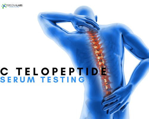 C telopeptide serum