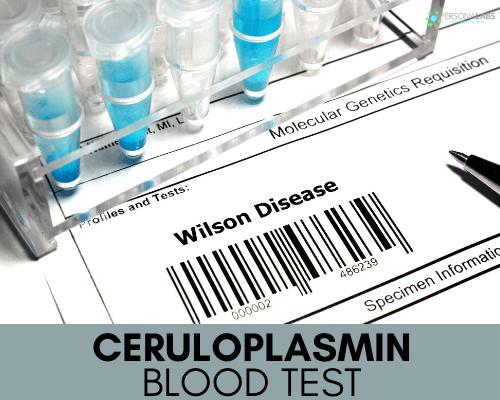 Ceruloplasmin Serum