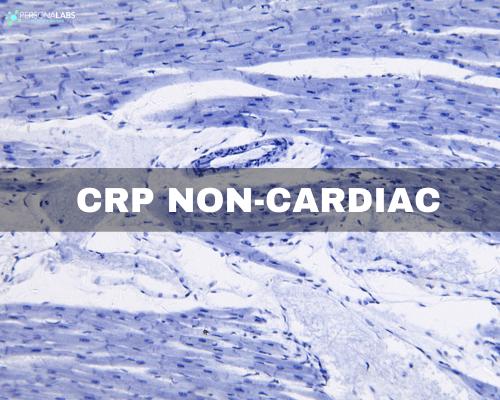 CRP Non cardiac