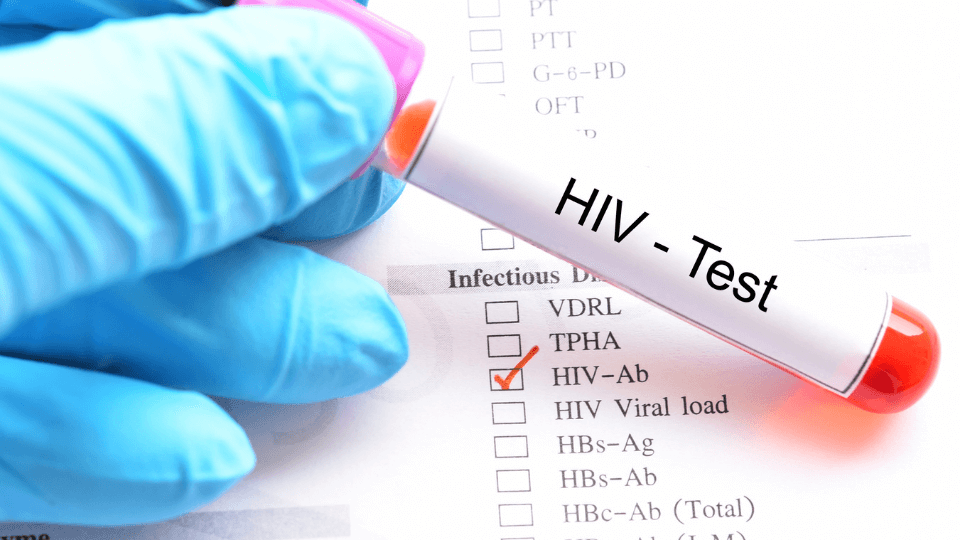 10 Early Signs of HIV