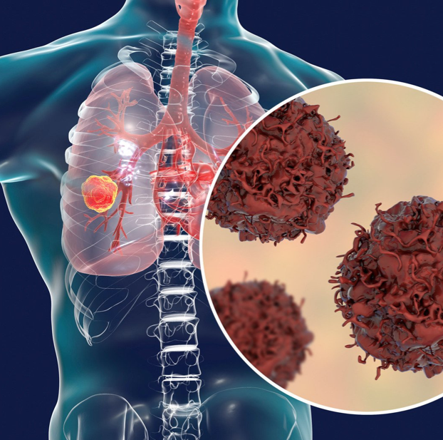anatomy of lung cancer from inside body